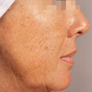 10 factori care pot duce la o piele uscata