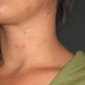 8 alergii alimentare comune. Cauze declansatoare si simptome