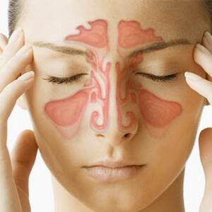 Cauze si tratamente naturiste pentru sinuzita