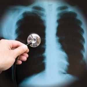 Pneumonia in timpul sarcinii- Ce trebuie sa stii?