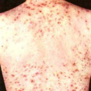 Sifilis - cauze, simptom, diagnostic si tratament naturist