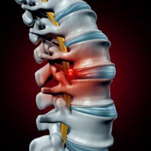 Tratamentul naturist al herniei de disc